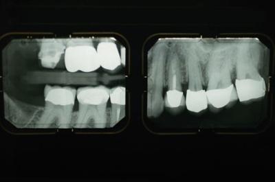 dentalxray.jpg